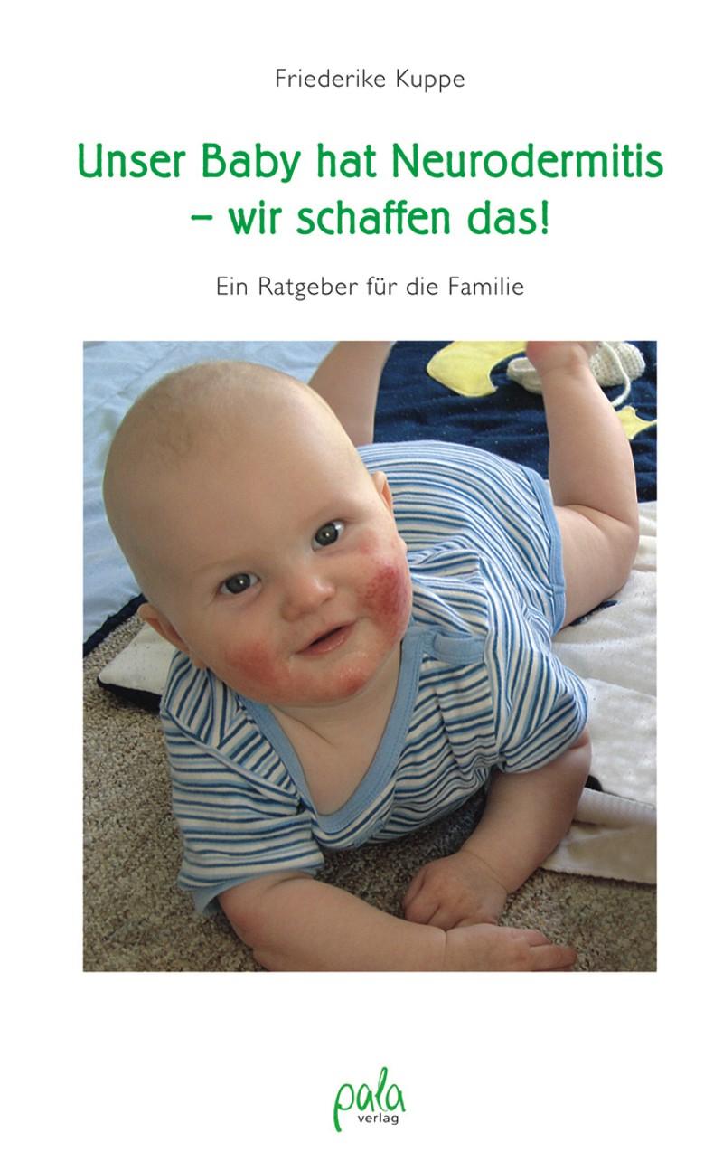9783895662300 Unser Baby hat Neurodermitis - wir schaffen das!